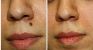 Before and After Mole Removal Image