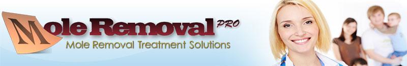 Mole Removal Pro