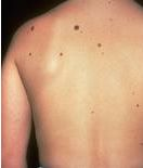 Professional Mole Removal in Burlington