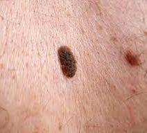 Skin Mole Removal Picture